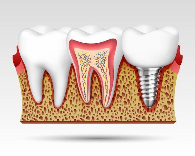 Denti 3d in un taglio con terminazioni nervose e con un impianto. illustrazione vettoriale