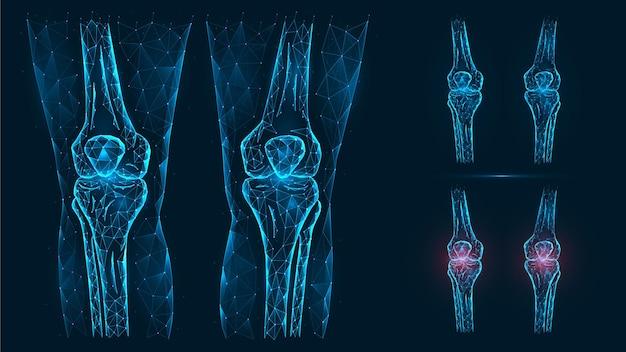 Illustrazione poligonale astratta dell'anatomia del ginocchio umano. malattia, dolore e infiammazione delle articolazioni del ginocchio.