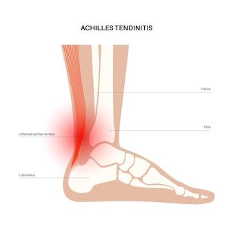 Poster anatomico tendinite achillea. infortunio alla caviglia, distorsione del legamento, dolore e problemi di strappo