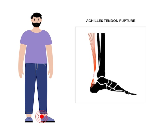 Poster anatomico di rottura del tendine di achille. infortunio alla caviglia, distorsione del legamento, dolore e problemi di strappo