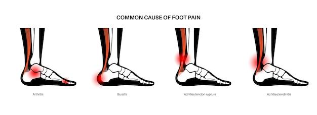 Rottura del tendine di achille, tendinite, borsite. infortunio alla caviglia, infiammazione da distorsione ai legamenti, dolore alle gambe