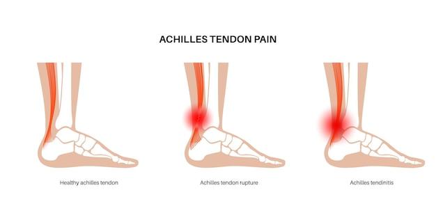 Rottura del tendine di achille, poster di tendinite. infortunio alla caviglia, distorsione del legamento, infiammazione e dolore