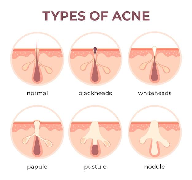 Tipi di acne anatomia. malattie dei brufoli vista in sezione come punti neri, cistici e punti bianchi. struttura della pelle e infezione dei pori infografica vettoriale. comedoni aperti e chiusi. malattia medica
