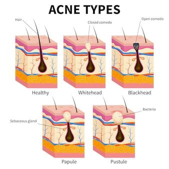Tipi di acne. diagramma medico di anatomia di malattie della pelle del brufolo