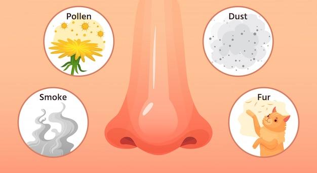 Malattia allergica naso rosso, sintomi di malattie allergiche e allergeni. illustrazione del fumetto delle allergie del fumo, del polline e della polvere