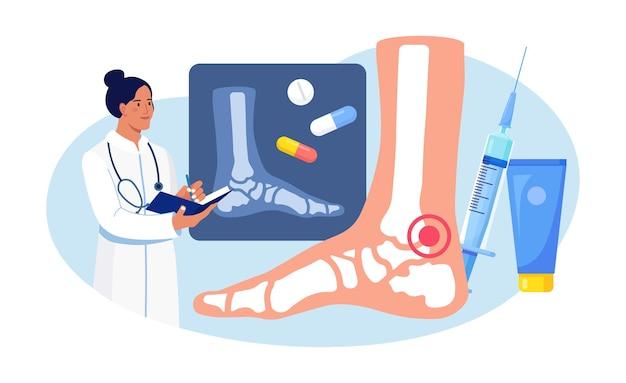Artrite del piede della caviglia. medico che esamina le immagini a raggi x delle articolazioni. artrosi, artrite reumatoide, malattie reumatiche. il medico cura il dolore articolare del paziente