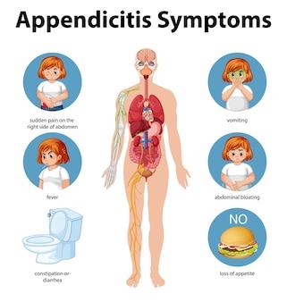 Infografica di informazioni sui sintomi di appendicite