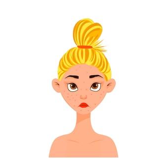 Fronte della donna di bellezza con l'acne. stile cartone animato. illustrazione vettoriale.