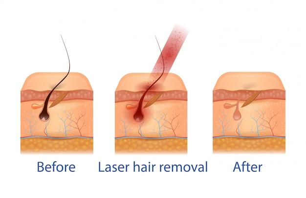 Procedura di depilazione prima e dopo.