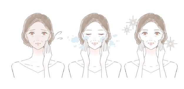Prima e dopo delle donne di mezza età che soffrono di pelle opaca. su sfondo bianco.