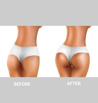 Prima e dopo l'esercizio dei glutei sexy