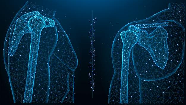 Illustrazione poligonale blu dell'articolazione della spalla, vista frontale e laterale