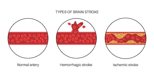 Ictus cerebrale isemico ed emorragico