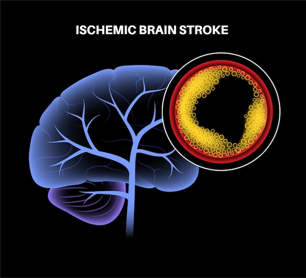 Ictus cerebrale isemico