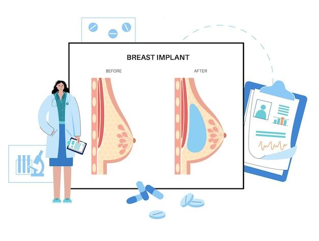 Concetto di protesi mammaria
