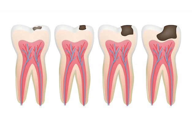 Dente carie. immagini mediche del dente dentale della procedura di problema dentale del pulpito di carie