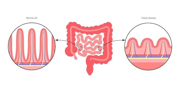 Celiachia. villi intestinali danneggiati e sani nella superficie delle pareti intestinali.