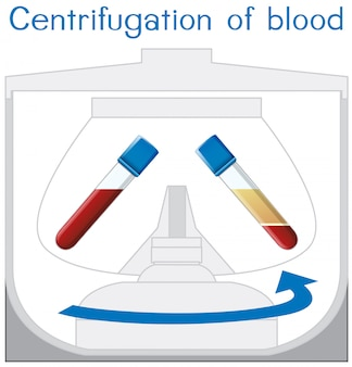 Centrifugazione del diagramma del sangue
