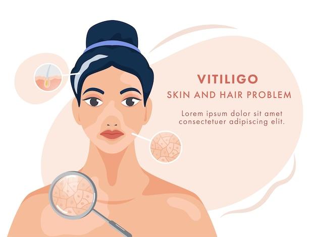 Carattere di giovane donna che mostra problemi di pelle e capelli vitiligine