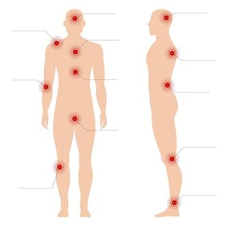 Il punto rosso doloroso del cerchio indica dolorosamente sull'illustrazione astratta medica della siluetta umana