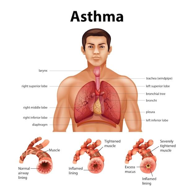 Confronto tra polmone sano e polmone asmatico
