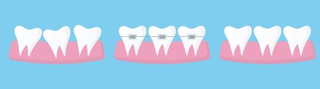 Il concetto di raddrizzare i denti con l'apparecchio risultato dopo aver indossato l'apparecchio infografica