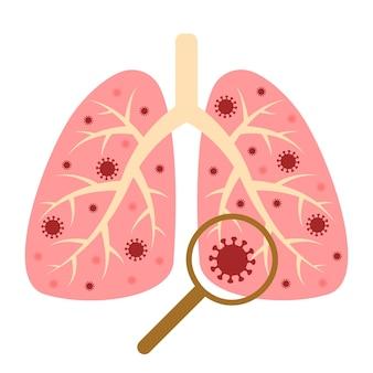 Progettazione del virus corona con polmoni della malattia e virus sintomi di diffusione della malattia del coronavirus