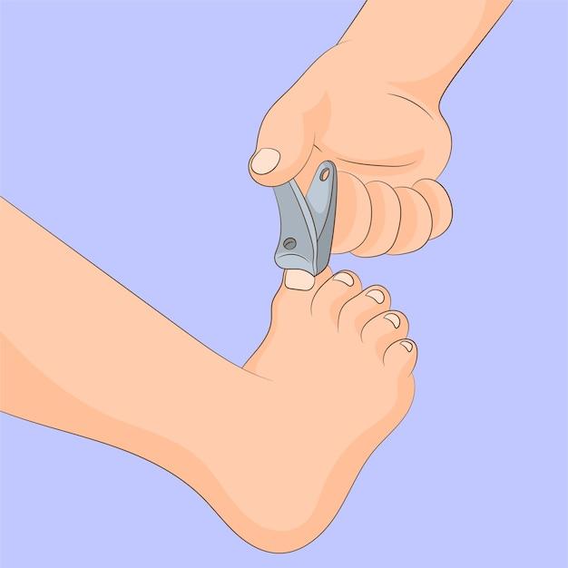 Tagliare l'unghia del piede con un tagliaunghie
