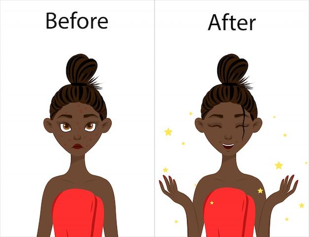Ragazza dalla pelle scura prima e dopo il trattamento dell'acne. stile cartone animato. illustrazione.