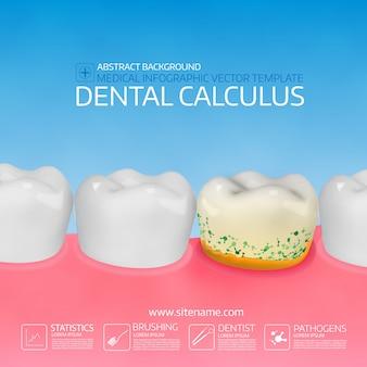 Calcolo dentale con batteri.