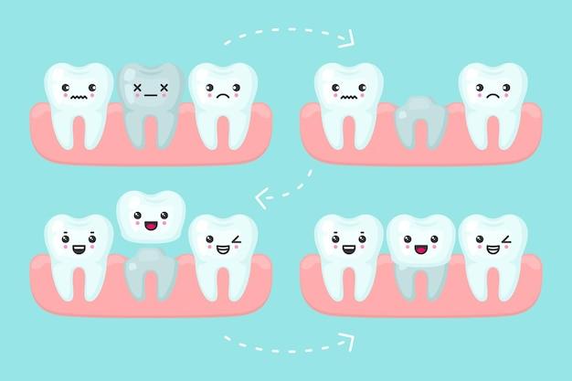 Impostazione della corona dentale, illustrazione del concetto di stomatologia. procedura di faccetta implantare con un dente artificiale