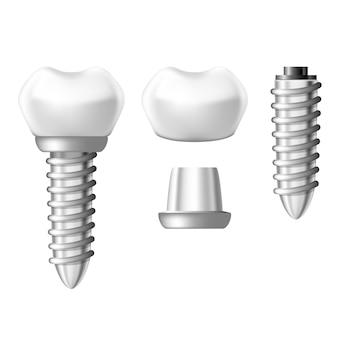 Parti del componente dell'impianto dentale - componenti della protesi dentaria
