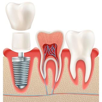 Set di impianti dentali.