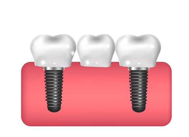 Impianti dentali, costruzione di ponti, stile realistico di protesi. odontoiatria, concetto di denti sani. illustrazione