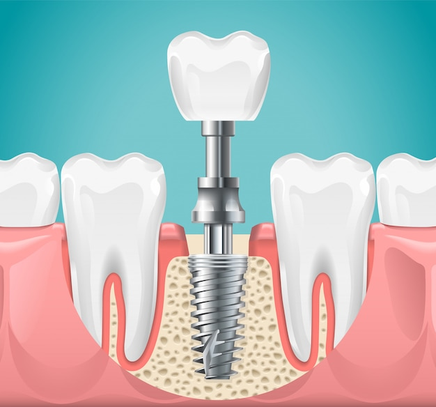 Chirurgia dentale. illustrazione del taglio dell'impianto del dente. denti sani e impianto dentale, poster di stomatologia