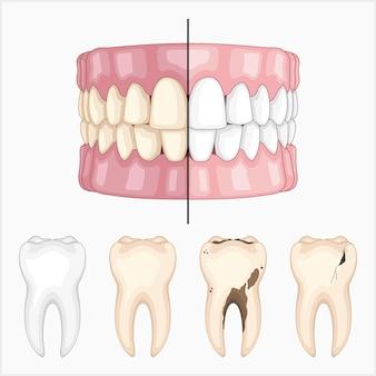 Set di illustrazioni vettoriali dentali