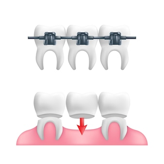 Concetto di protesi dentaria - denti sani con un ponte dentale fisso e parentesi graffe sopra di essi.