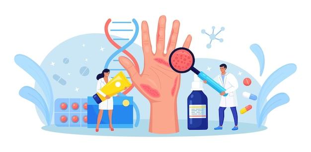 Esame dermatologo big hand con pelle rossa e ras. psoriasi, vitiligine, dermatite. eczema - malattia infiammatoria della pelle. conseguenze di una cura impropria, lavaggio frequente delle mani, disinfezione
