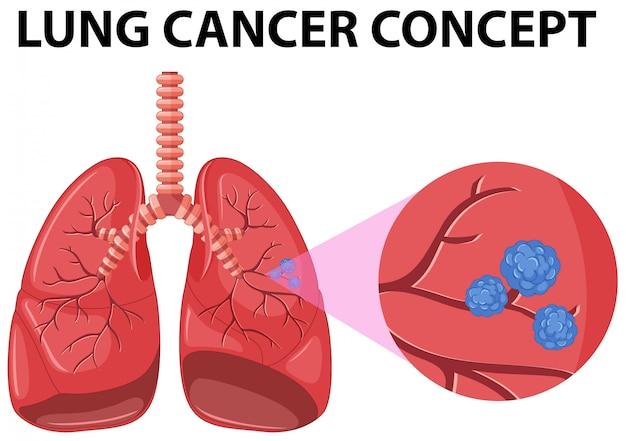 Diagramma del concetto di cancro ai polmoni