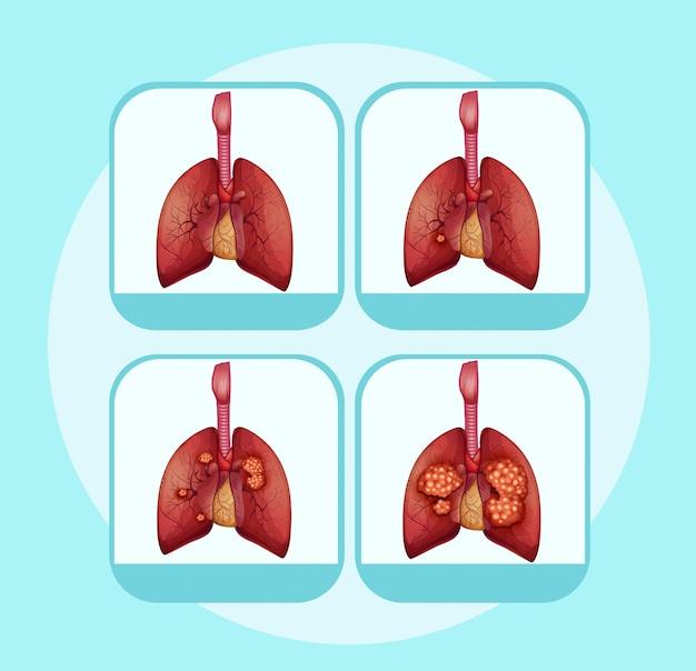 Diagramma che mostra diverse fasi del cancro del polmone