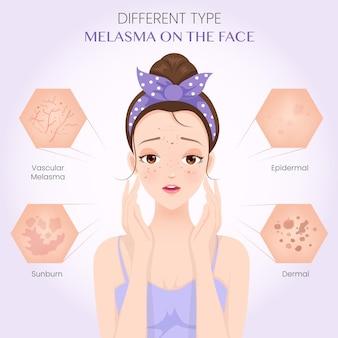 Melasma di diverso tipo sul viso