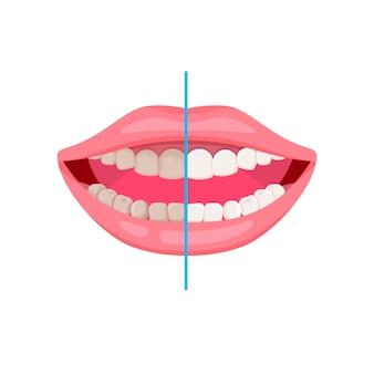 Denti sporchi e puliti. pulizia dei denti e igiene orale. bocca aperta. cure odontoiatriche, come lavarsi i denti.