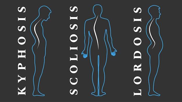 Malattie della colonna vertebrale. scoliosi, lordosi, cifosi. difetti di postura del corpo. curvatura posteriore. tipi di deformità spinali. infografica sulle malattie mediche. sintomo diagnostico. illustrazione vettoriale.