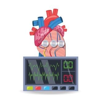 Macchina per elettrocardiografia per conoscere il ritmo cardiaco