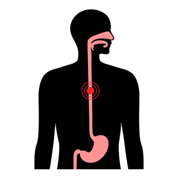 Carcinoma esofageo. anatomia dell'esofago e dello stomaco nel corpo maschile.