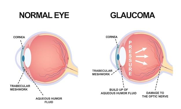 Struttura degli occhi. anatomia di un difetto oculare, glaucoma