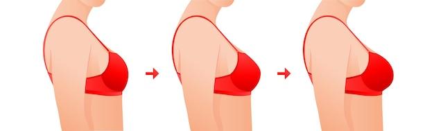 Seno femminile prima e dopo il concetto di chirurgia plastica per la correzione delle dimensioni del seno