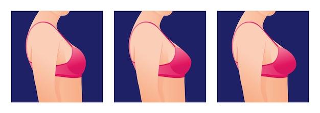 Seni femminili in reggiseno prima e dopo l'aumento concetto di chirurgia plastica