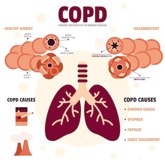 Infografica copd design piatto