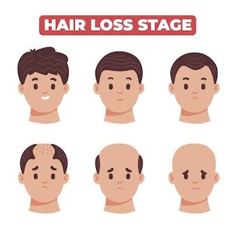Raccolta di fasi di perdita di capelli disegnata a mano piatta